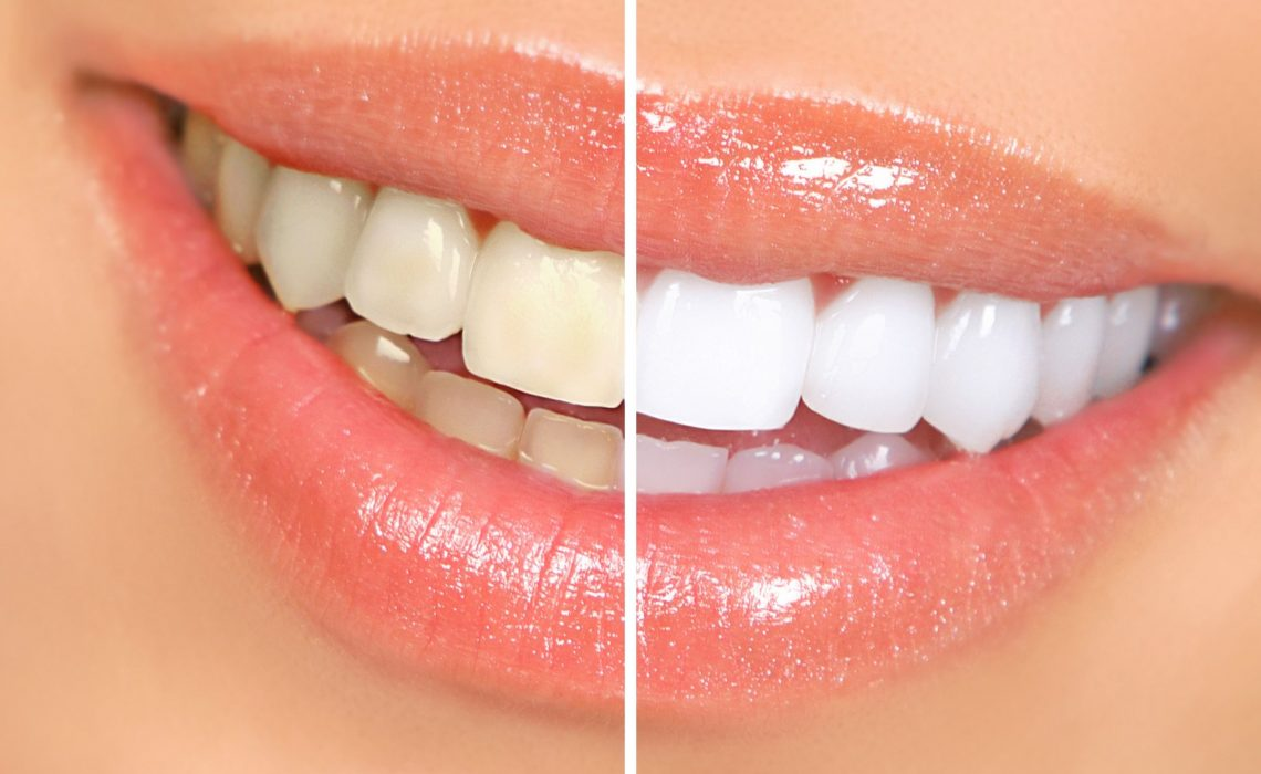 Things Consumers Should Understand About Professional Teeth Whitening in O'Fallon MO