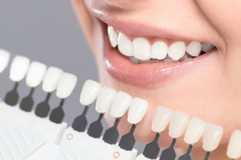 The Top Benefits That You Can Reap From Getting Your Teeth Whitened